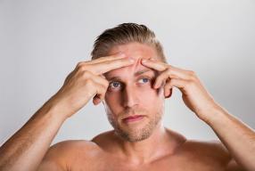 Démystifions la santé des hommes:  Les facteurs aggravants de l'acné.